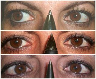 Fehlhaltungen gehen oft mit einer Störung der Augenkonvergenz einher.