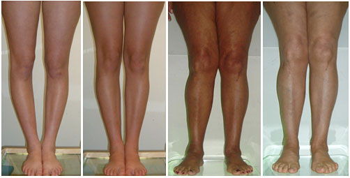 Behandlung von O-Beinen und X-Beinen